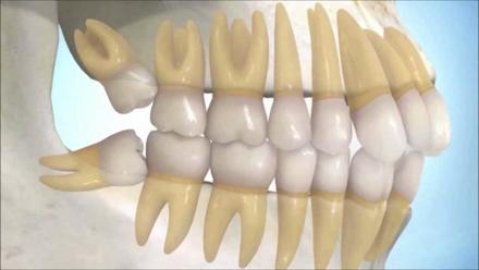 Cirugia oral 2
