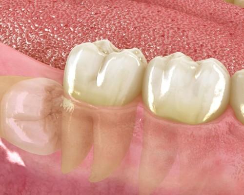 Cirugia oral 4