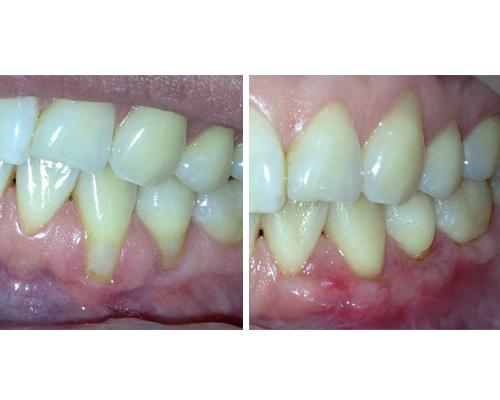 periodoncia1-2