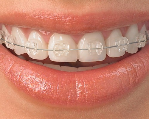 straighten-teeth-with-ICE-ceramic-braces2 (1)
